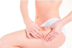 孕妇产妇妊娠纹诊断详细描述